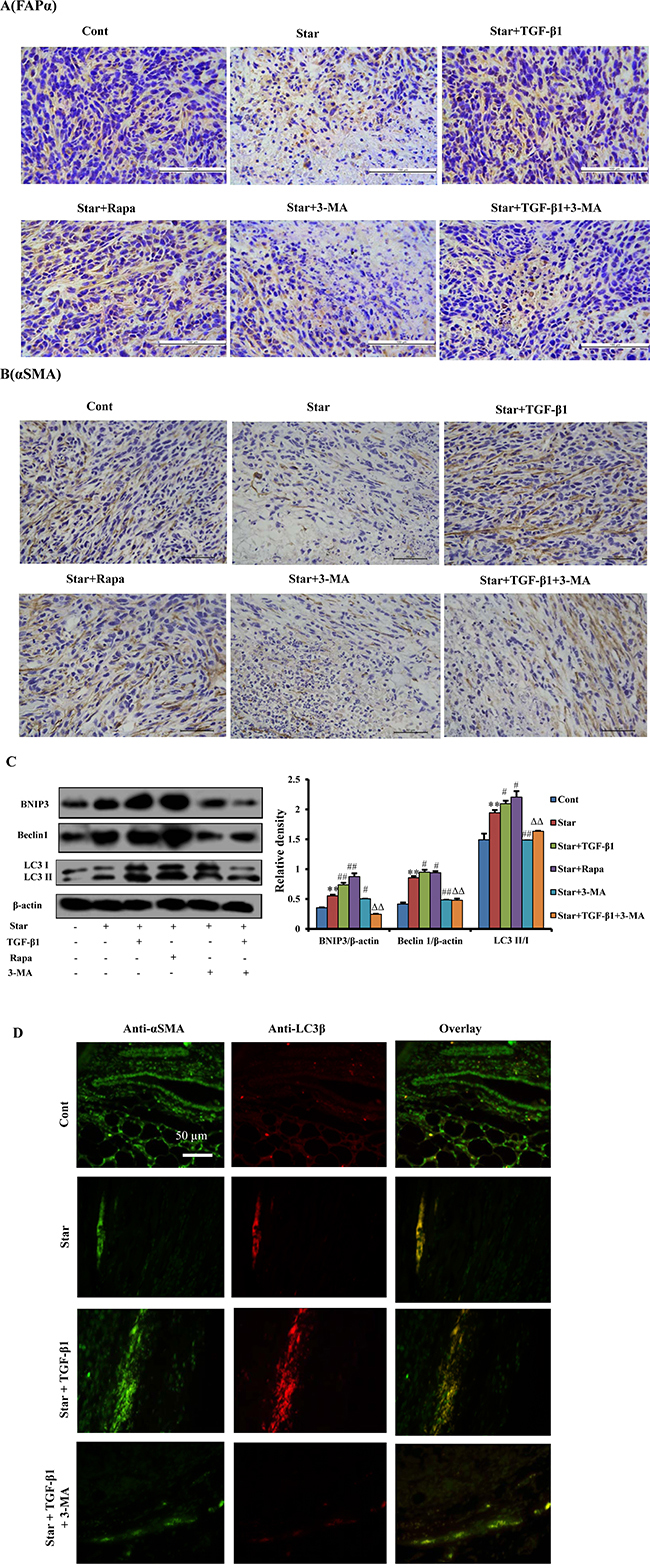 TGF-β1-induced autophagy could also activate the formation of CAFs phenotype in tumor microenvironment of mixed xenograft tumor.