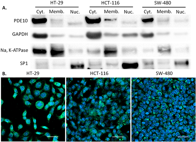 Subcellular localization of PDE10 in human colon tumor cell lines.