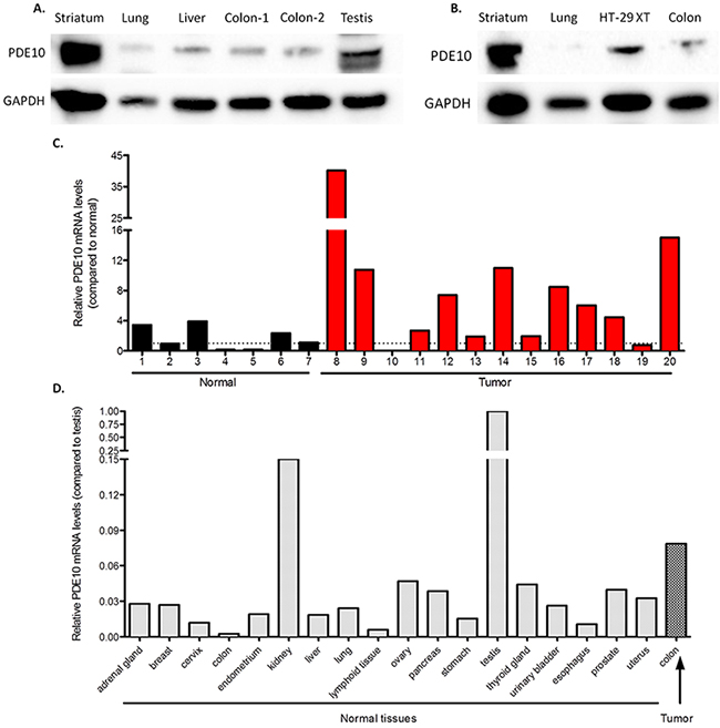 PDE10 expression in normal tissues and colon tumors.