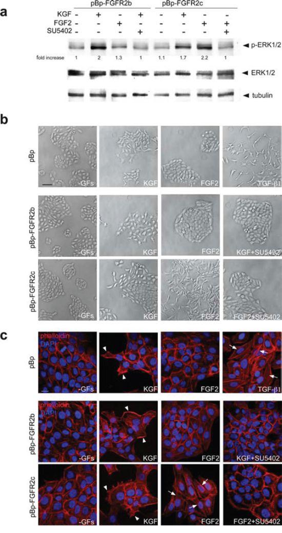 The expression of FGFR2c and its ligand-dependent activation trigger morphological and cytoskeletal changes reminiscent to EMT.