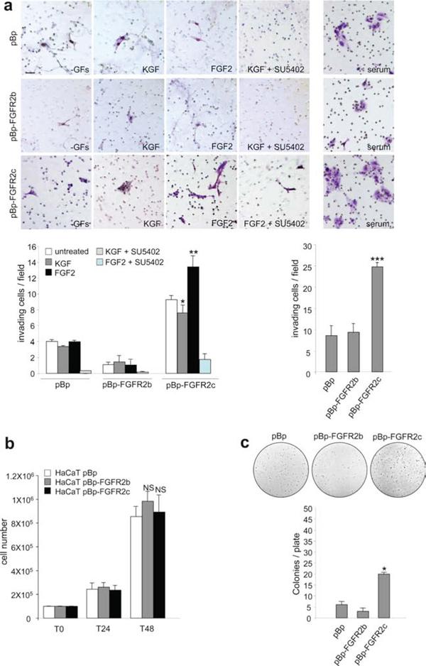 "FGFR2c expression and signaling confer ""in vitro"" tumorigenic properties."