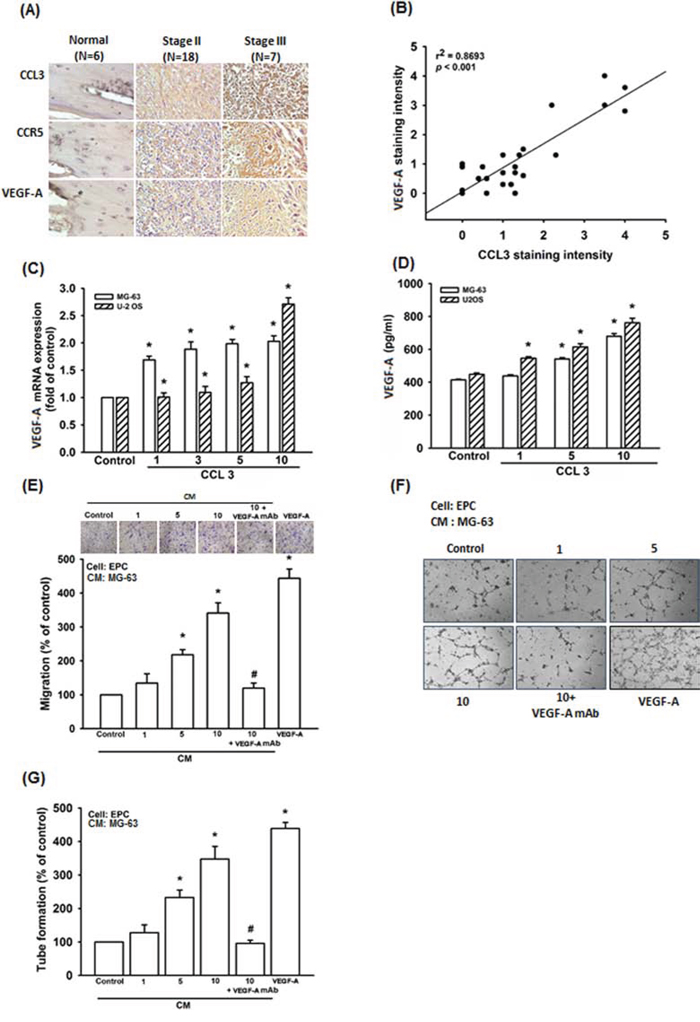 CCL3 enhances angiogenesis by increasing VEGF-A expression in human osteosarcoma cells.