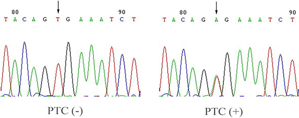 Detection of BRAF T1799A in PTC.