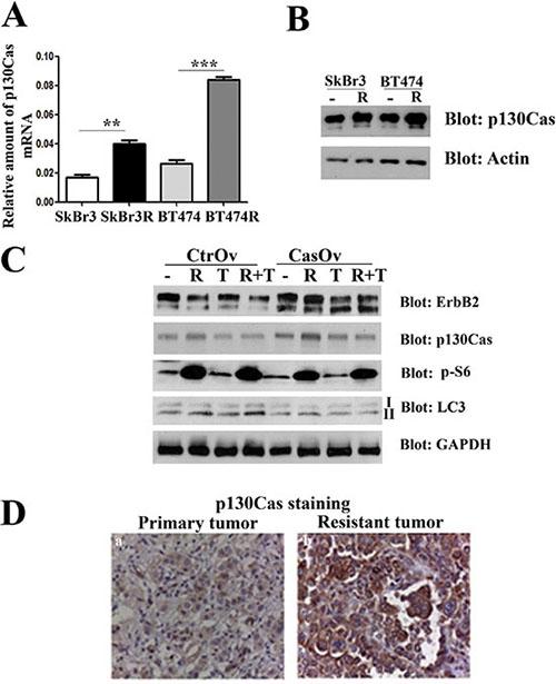 p130Cas overexpression promotes resistance to trastuzumab.