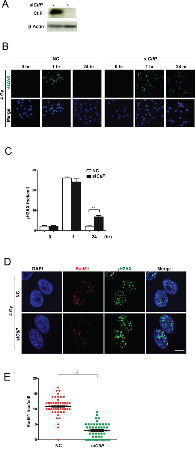 Loss of CtIP causes HRR deficiency.