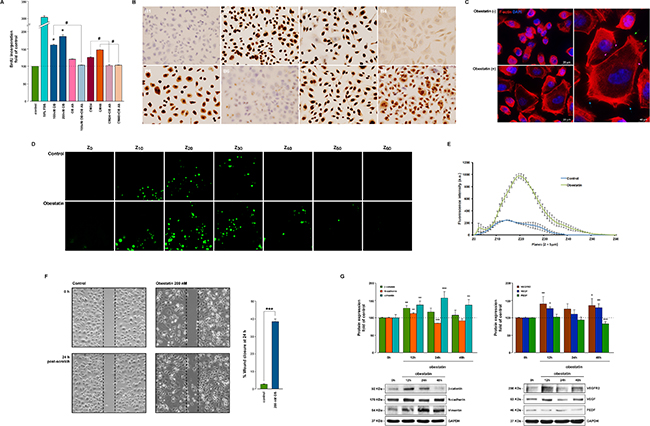 Obestatin promotes proliferation, cell mobility and invasion in AGS cells.