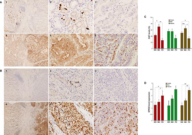 GPR39, obestatin and Ki67 expression in human gastric adenocarcinomas.