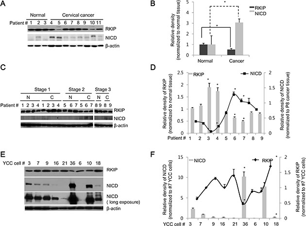 RKIP and NICD are inversely expressed in human cervical and stomach cancer tissues.