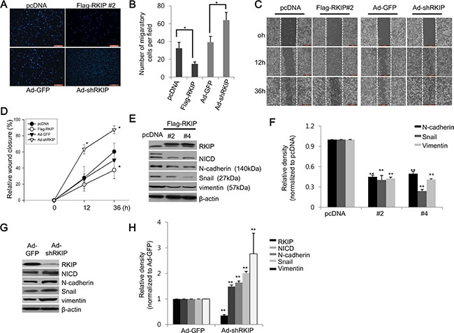 RKIP controls migration and invasion of cancer cells via downregulation of EMT proteins.