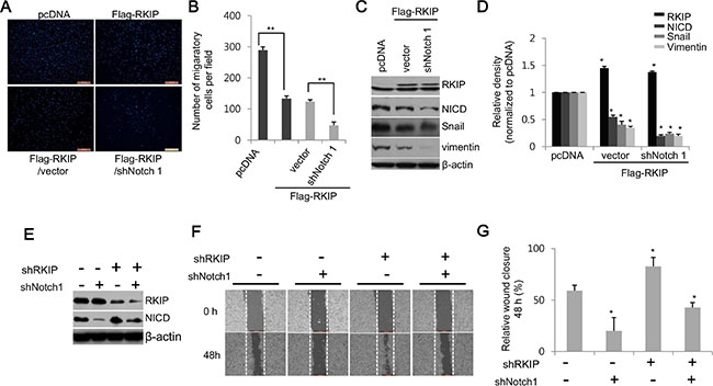 RKIP inhibits cell migration and invasion by directly downregulating Notch1 activity.
