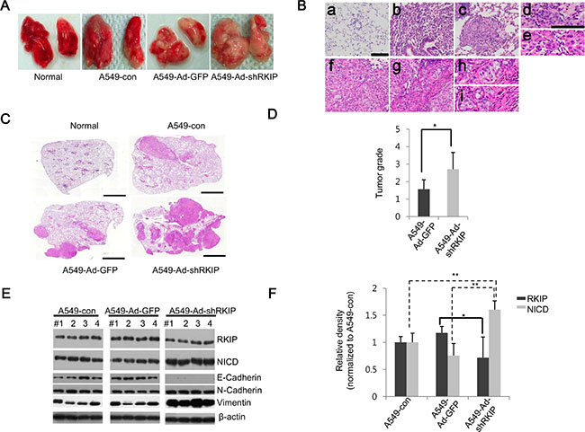 Knockdown of RKIP promotes tumor metastasis in vivo in orthotopic lung cancer mouse models.