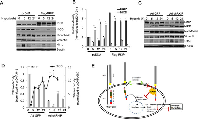 RKIP inhibits NICD-induced EMT in hypoxia.