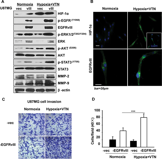 Effect of hypoxia and vitronectin microenvironment on U87MG-EGFRvIII cells.