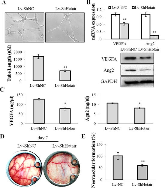 Hotair mediated angiogenesis in NPC cells.