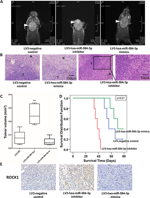 miR-584-3p antagonizes hypoxia-induced pro-invasive effects in an orthotopically xenografted glioma mouse model.