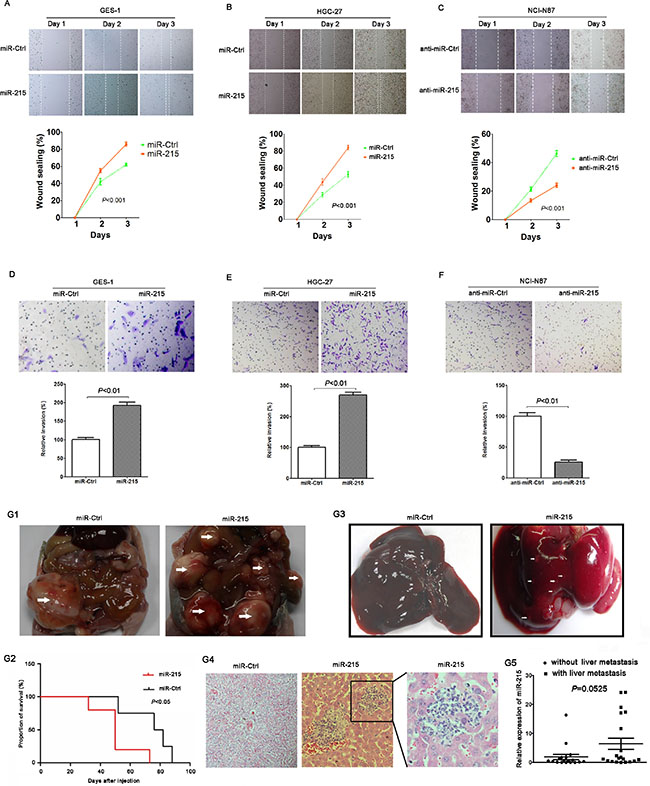 miR-215 promoted cell migration, invasion and metastasis in vitro and in vivo.