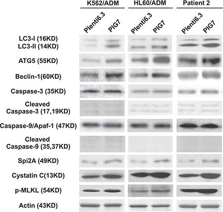 Effect of pig7 on the expression of markers for autophagy, caspases, intrinsic protease inhibitors, and necroptosis in leukemia cells.
