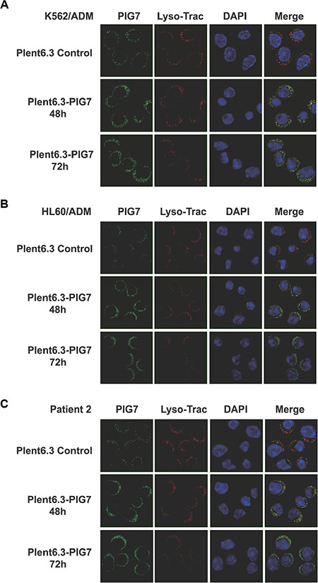 PIG7 and lysosomal cellular localization.