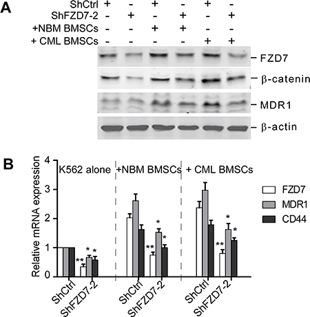 Down-regulation of FZD7 abrogates activation of Wnt/β-catenin signaling induced by BMSCs.