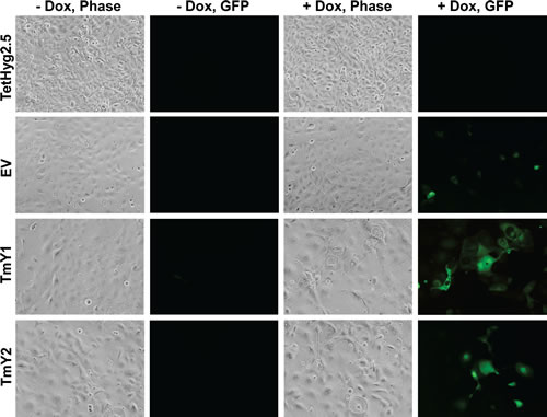 TMSB4Y expression leads to changes in cell morphology.
