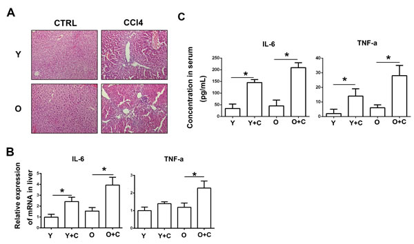 Old mice exhibited exacerbated inflammation after CCl4 administration.
