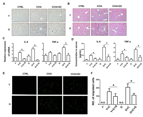 More MSCs were recruited to old mice owing to exacerbated degree of inflammation induced by hyper-activation of KCs.