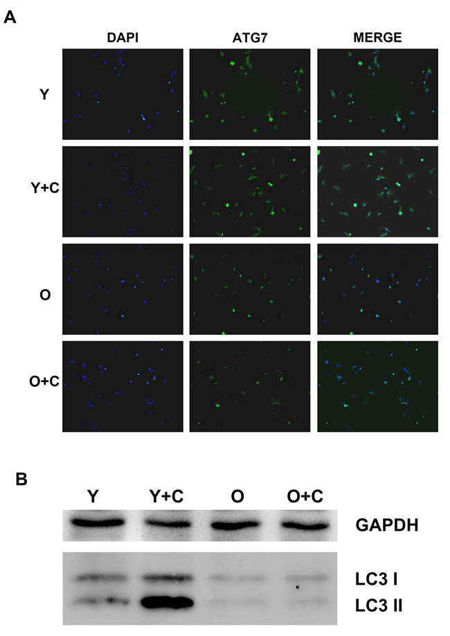Autophagy in KCs was impaired in old mice after CCl4 treatment.