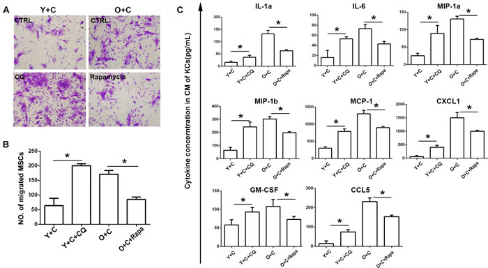 Autophagy interference reversed recruitment of MSCs to KCs.