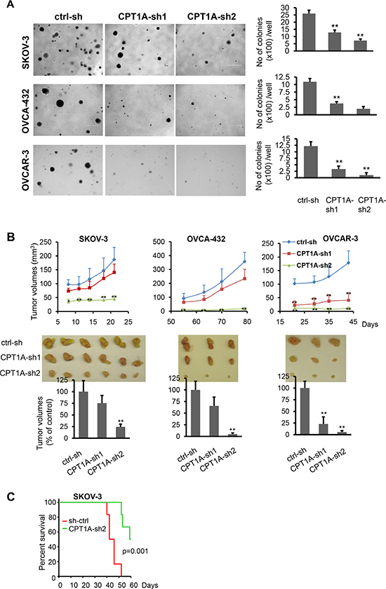 CPT1A knockdown decreases anchorage-independent growth and in vivo aggressiveness of ovarian cancer cells.