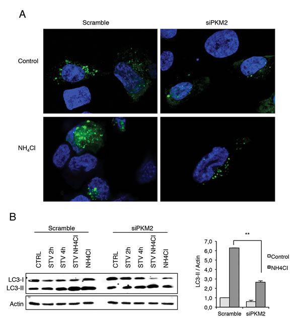 Immunofluorescence analysis of autophagy in the presence and absence of PKM2.