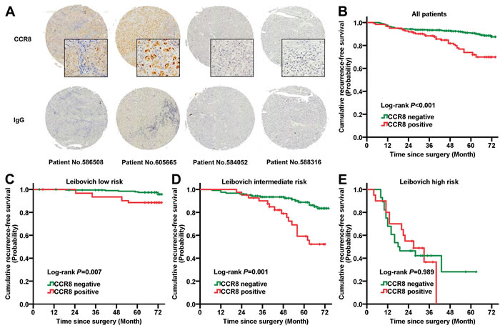 Prognostic power of CCR8 in diverse Leibovich risk groups.