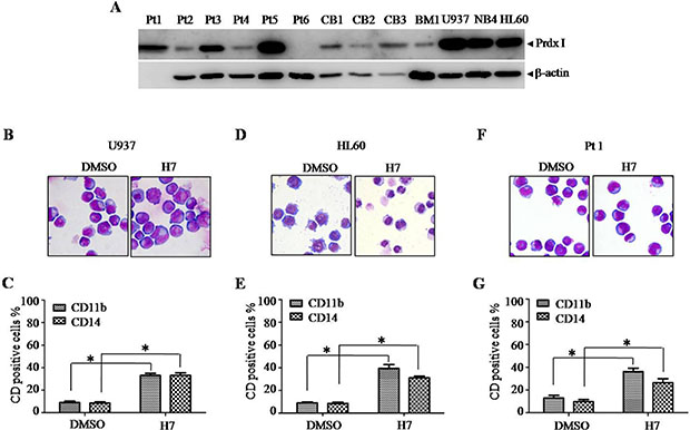 H7 induces monocyte differentiation in U937, HL60, and primary leukemia cells. (A)