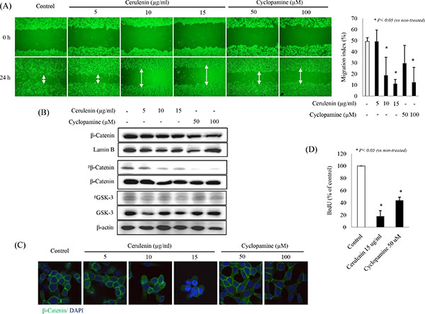 SHH inhibitors suppress HCT-116 cell migration and proliferation.