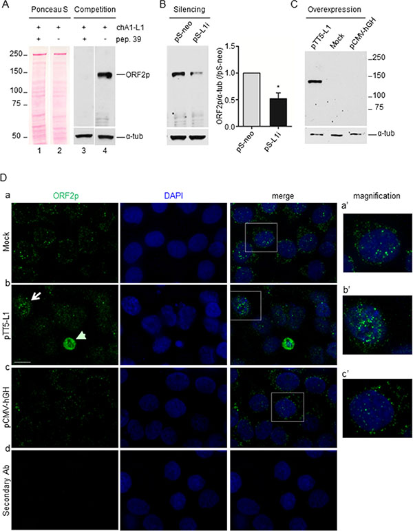 chA1-L1 monoclonal antibody specifically recognizes both endogenous and overexpressed ORF2p in A-375 melanoma cells.