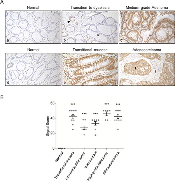 Immunohistochemical staining of ORF2p in human colon tissue sections.