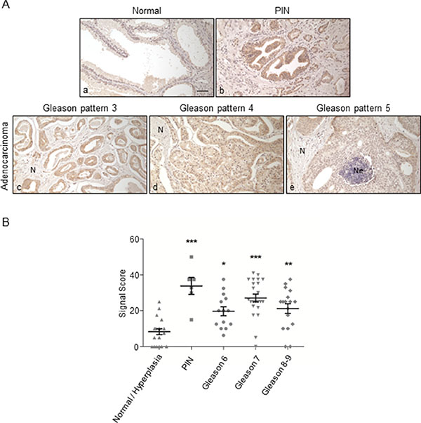 Immunohistochemical staining of ORF2p in human prostate tissue sections.