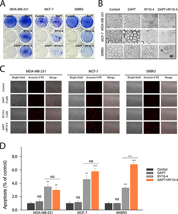 DAPT and RY10-4 show synergy in inhibiting cell proliferation in vitro.