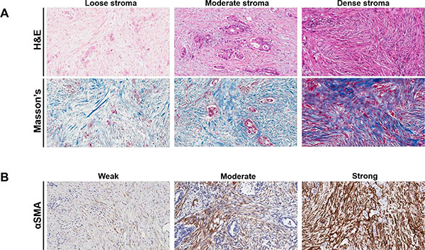 Immunohistochemical staining of desmoplastic stroma in patients with pancreatic ductal adenocarcinoma.