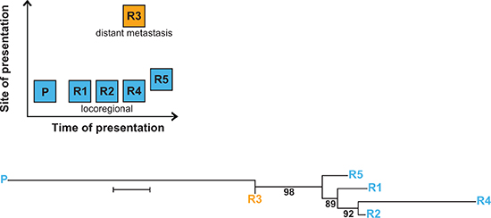 Multiple relapses in patient #12 reveal spatio-temporal change of tumor-specific mt variants.