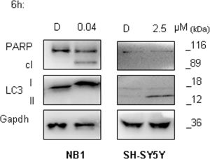Autophagy activation is an early event in ALKF1174L mutated cells.