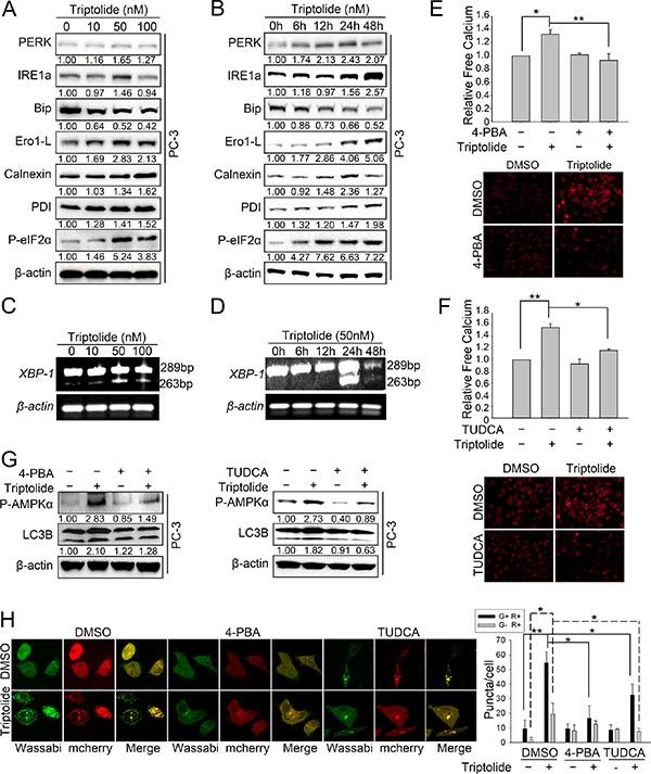 Triptolide induces autophagy via ER stress-dependent calcium release.