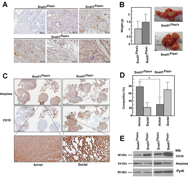 Snail1 is expressed in the stroma of Ela-myc tumors and contributes to maintaining the acinar phenotype.