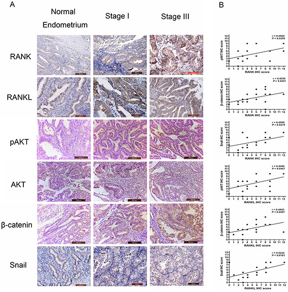 Expression of RANK/RANKL and prometastis-mediated factors in EC specimens.