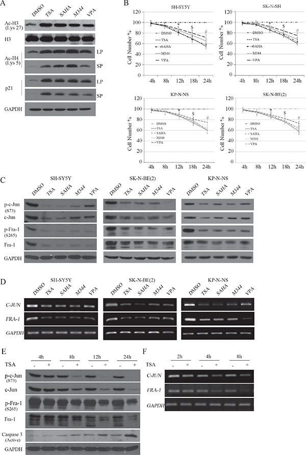 HDACI-induced transcriptional suppression of c-Jun and Fra-1 occurs before the inhibitory effects on cell proliferation.
