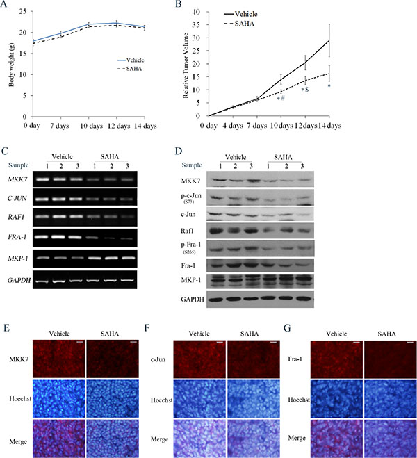 Effects of SAHA on tumor growth and MKK7/c-Jun and Raf1/Fra-1 expression in SH-SY5Y xenograft models.