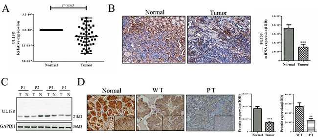 Expression of UL138 is down-regulated in human gastric cancer tissues.