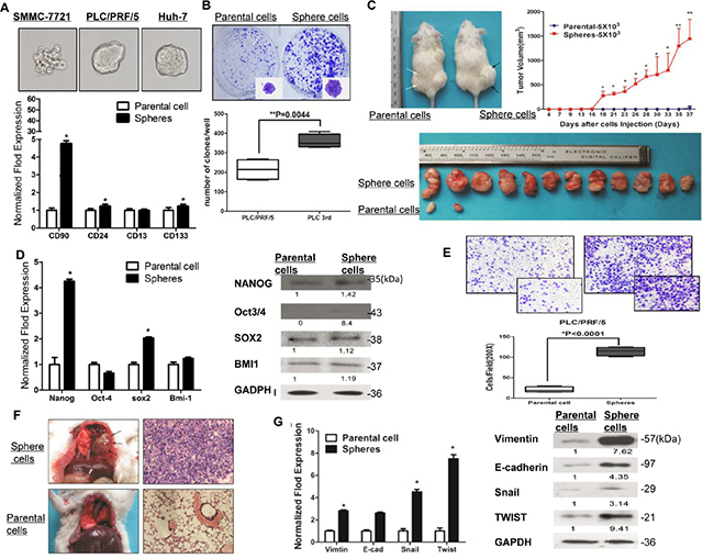 Sphere-forming HCC cells possessed characteristics of cancer stem cells and capacity to metastasize in vivo and in vitro.