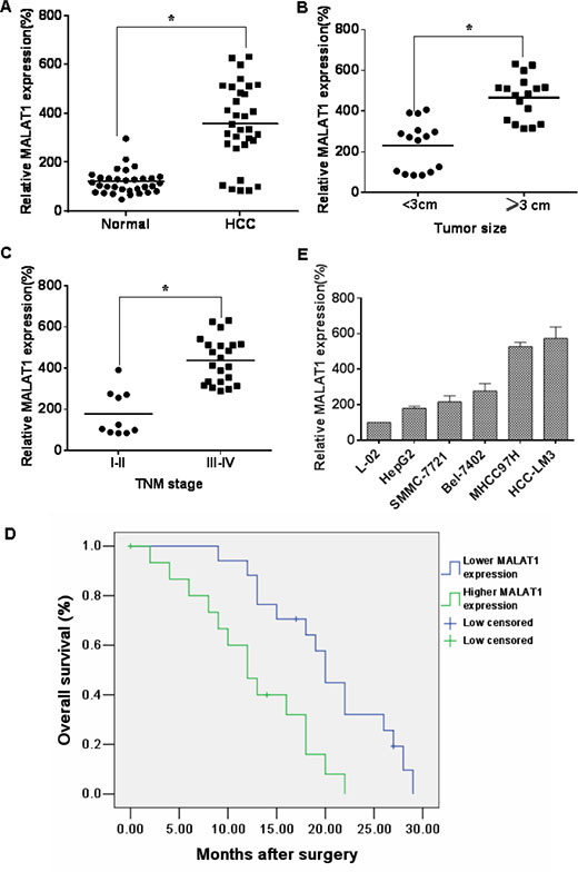 MALAT1 over-expression is associated with clinicopathological characteristics of HCC.