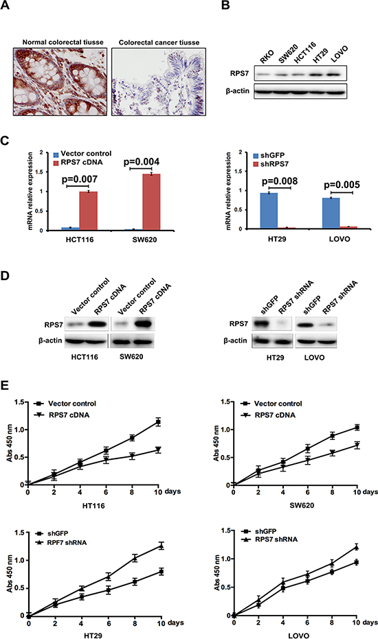 Expression of RPS7 in normal colorectal tissues, CRC tissues and CRC cell lines and the effect of RPS7 on CRC cell proliferation.
