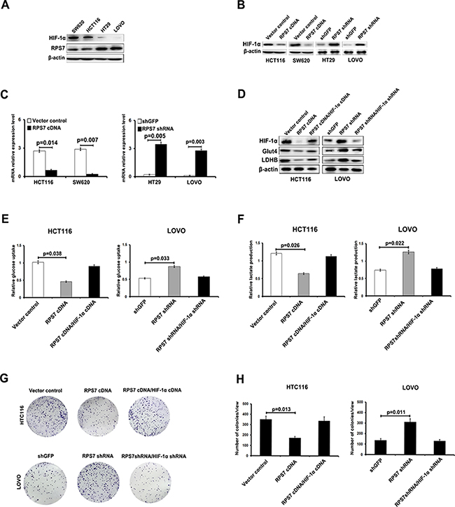 RPS7 interacts with HIF-1α to regulate the glucose uptake capacity and lactate production of colorectal cancer cells.